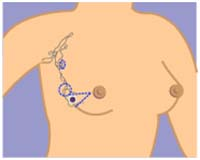 India Surgery Breast Cancer,Breast Cancer,Breast Cancer Surgery India, Cost Breast Cancer,Breast Cancer Stage's, Breast Cancer
