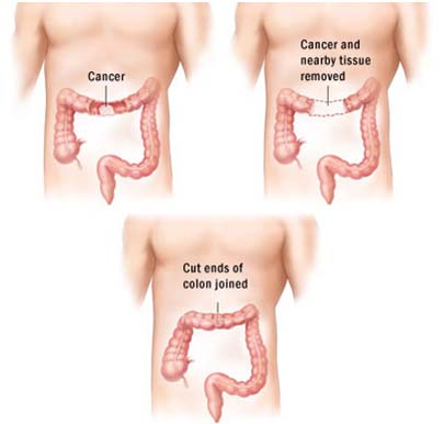 India Surgery Colon Cancer, Cost Colon Cancer Treatment, Colon Cancer, India Surgery Centre For Cancer Surgery