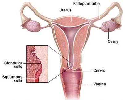 Cervical Cancer Surgery ,Cervical Cancer, Cervical Cancer, India Surgery Cervical Treatment