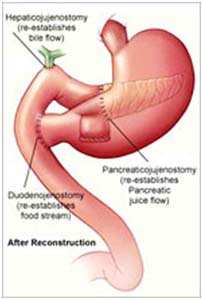 India Surgery Pancreatic Cancer, Pancreatic Cancer, Pancreatic Cancer