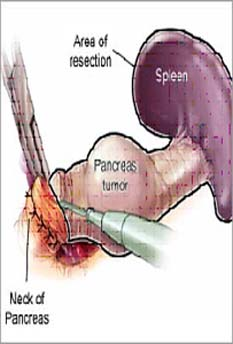 India Surgery Pancreatic Cancer, Cost Pancreatic Cancer, Pancreatic Cancer, India Surgery Pancreatic Cancer Treatment