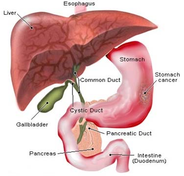 India Surgery Stomach Cancer, Stomach Cancer, India Surgery Stomach Cancer Treatment, India Surgery Symptoms