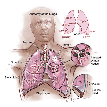 Lung Cancer Treatment, India Surgery Lung Cancer Treatment, India Surgery Lung Cancer Symptoms