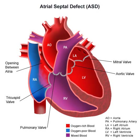 Surgery India Pediatric Heart,India Cost Atrial Septal Defect Surgery, India Atrial Septal Defect Surgery, India Flooding
