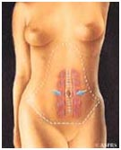 Surgery India Tummy Tuck Tummy Tuck, Tummy Tuck Surgery
