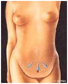 Surgery India Tummy Tuck Tummy Tuck, Tummy Tuck Surgery, India Tummy Tuck