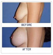 Surgery India Breast Lift Surgery, Brest Lift, Breast Lift Surgery, India Breast Lift