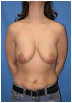 Brest Lift, Breast Lift Surgery, India Breast Lift Surgery, India Breast Lift