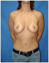 Surgery India Breast Lift Surgery, Cost Breast Lift Surgery, Breast Lift Surgery, India Breast Lift Surgery