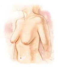 Surgery India Breast Lift Surgery, Breast Lift Surgery, India Breast Lift Surgery