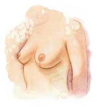 Surgery India Breast Lift Surgery, Cost Breast Lift Surgery, Breast Lift Surgery, India Breast Lift