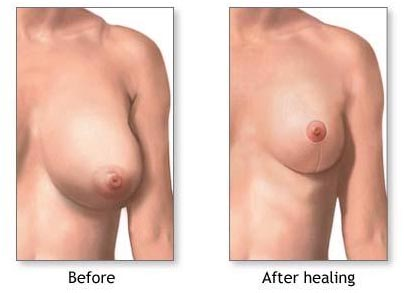 Surgery India Breast Reduction Surgery, India Reduction Mammaplasty, India Breast Reduction Surgery, India Benefits Of Breast Reduction Surgery