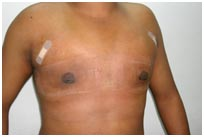 Surgery India Gynaecomastia Surgery, Gynaecomastia Surgery