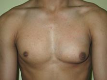 India Cost Gynaecomastia Surgery, Gynaecomastia Surgery, India Gynaecomastia, India Male Breast Reduction Surgery