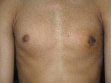 Surgery India Gynaecomastia Surgery, India Gynaecomastia, India Male Breast Reduction Surgery