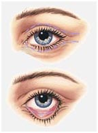 Surgery India Blepharoplasty,India Cost Blepharoplasty Surgery,India Blepharoplasty