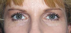 Surgery India Blepharoplasty,Eye Lid, Blepharoplasty Eye Lid Surgery