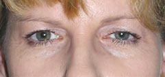 India Cost Blepharoplasty Surgery,Eye Lid, India Blepharoplasty
