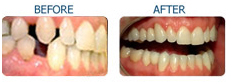 Cosmetic Dentistry India, Cosmetic Dentistry, India Dentistry, India Dental Surgeon India