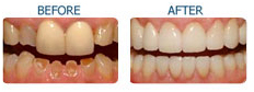 Cosmetic Dentistry India, Cost Cosmetic Dentistry India, India Dental Surgeon India
