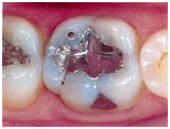 Dental Inlay Treatment,Porcelain Inlay,Cost Dental onlay, Cost Ceramic Dental Inlay