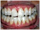 Dental Crown, Cost Dental Crown India, Mumbai Dental Crown