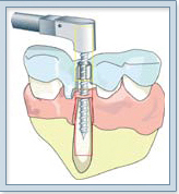 Dental Implant India, Affordable Dental Implants Dentist India