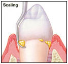 Dental Teeth Scaling India, Cost Dental Scaling Hospital India, Dental Ultrasonic Scaling