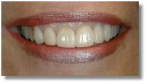 Laser Dentistry Treatment India, Laser Dentistry, Dental Laser Treatment, Laser Dental Clinic In India