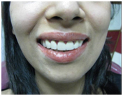 Laser Dentistry Treatment India, Dental Laser Treatment, Laser Dental Clinic In India, Laser Root Canal Treatment