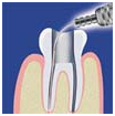 Dental Laser Treatment, Laser Dental Clinic In India, Laser Root Canal Treatment
