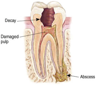 Root Canal Treatment India, Root Canal Treatment Delhi India, Root Canal Treatment India