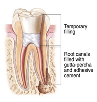 Root Canal Treatment India, Cost Root Canal Treatment Hospital India, Root Canal Treatment Delhi India