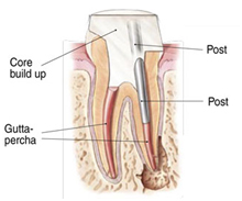 Root Canal Treatment India, Root Canal Specialist