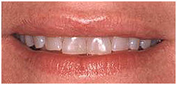 Cost Smile Design India, Smile Designing, Cosmetic Dentistry, Tooth Whitening
