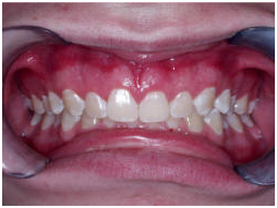 India Surgery Teeth Polishing Fluoride,Cost Teeth Polishing Fluoride, India Low Cost Teeth Polishing Fluoride