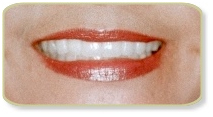 Cost Porcelain Veneers Treatment,  Low Cost Porcelain Veneers Treatment  Delhi India
