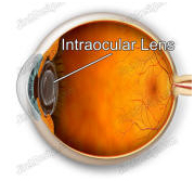 Contact Lens, Eye Operation, India Intraocular Lenses, Intraocular Lenses