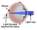Eye Disease, Photorefractive Keratectomy Surgery,, Presbyopia Reversal, Risk, Complications, Side Effects, Refractive Errors Problems, Refractive Errors Surgery, India Cost Of Refractive Errors Surgery, Low Cost Hospitals Of Refractive Errors Surgery