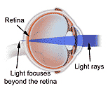 India Refractive Errors Surgery, India Corrective Eye Surgery, Eye Disease, Photorefractive Keratectomy Surgery,, Presbyopia Reversal, Risk, Complications, Side Effects
