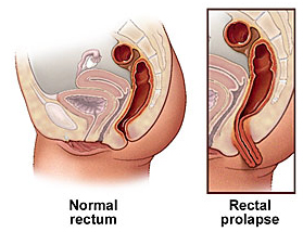 India Surgery Rectal Prolapse Surgery, Cost Rectal Prolapse Treatment, Rectal Prolapse Surgery
