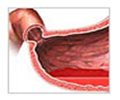 India Surgery Stomach Ulcer, Cost Ulcer Treatment, Ulcers Treatment, India Cost Gastric- Duodenal Ulcer Treatment Hospital