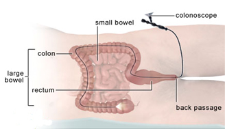 Affordable Colonoscopy Care Hospital India, Colonoscopy Surgery India, Cost Colonoscopy Surgery, India Colonoscopy Surgery