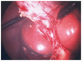 India Photos Of Laparoscopic Cholecystectomy Surgery, India Well Known Clinics India, India Cheap Treatment Choices