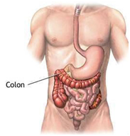 Cost Colectomy Surgery Hospital, Laparoscopic Colectomy Surgery India, India Colon Cancer