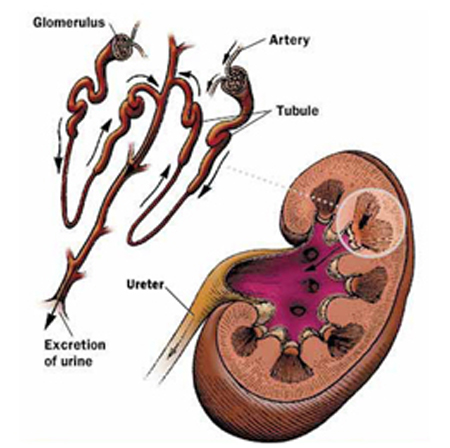 India Surgery Glomerulonephritis, Cost Glomerulonephritis Surgery India