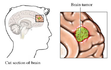 India Brain Surgery Hospital, Brain Tumors Treatment India Brain Tumors, India Brain, India Tumors, India Brain Problems