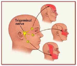 India Surgery Trigeminal Neuralgia,Cost Trigeminal Neuralgia Surgery