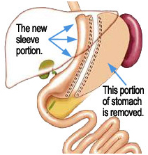 India Surgery Sleeve Gastrectomy,Sleeve Gastrectomy,Cost India Gastric
