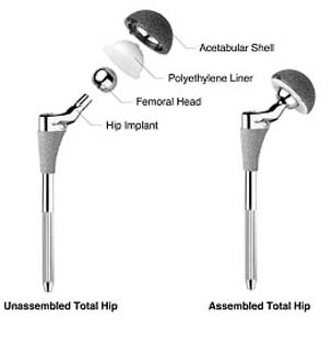 India Surgery Computer Hip Replacement, Cost Hip Computer Navigation